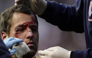 Томас Сёренсен получает травму в матче с «Тоттенхэмом» (c) Telegraph